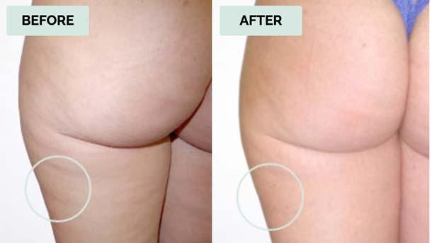 Elisa Before & After - KeraHealth Smooth Curves